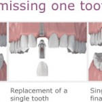 1-dental-implants-brooklyn-ny