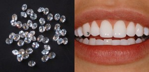 7320141652290360000teeth jewellry